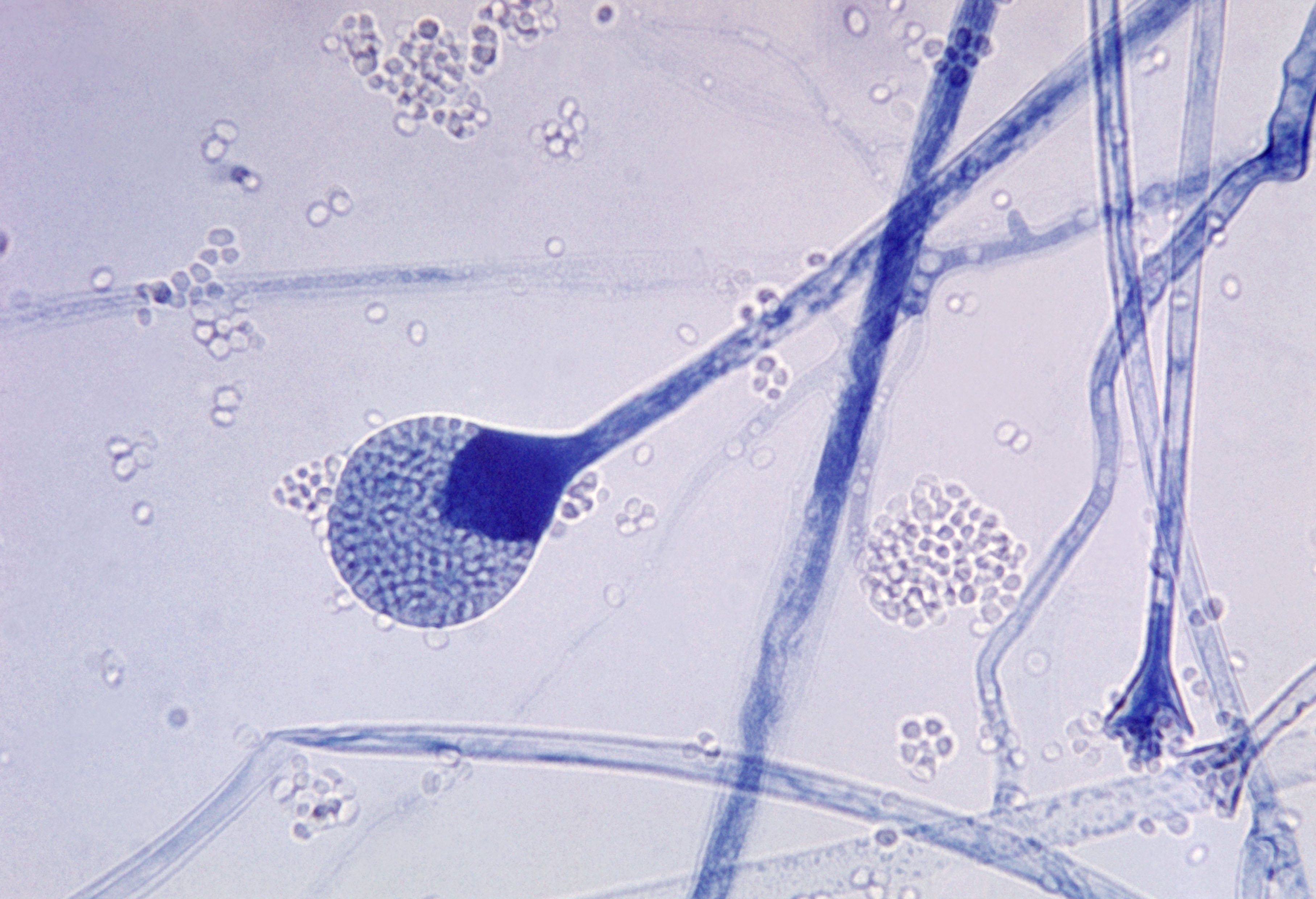 20-mucormycosis